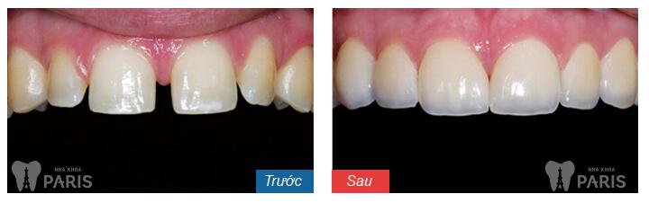 Chi phí chỉnh răng thưa giá bao nhiêu tiền? 2