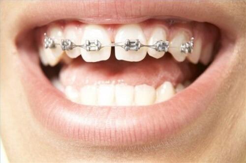 Giải đáp thắc mắc: Răng thưa nên niềng răng hay bọc sứ? 3