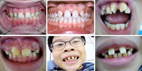 Tổng hợp các vấn đề cần biết về răng thưa 1