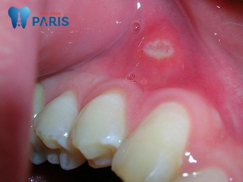 Sổ tay bệnh lở miệng: Dấu hiệu, nguyên nhân & Cách khắc phục 1