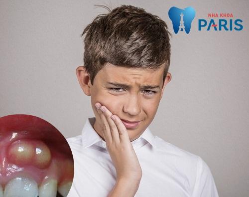 Sổ tay bệnh lở miệng: Dấu hiệu, nguyên nhân & Cách khắc phục 3