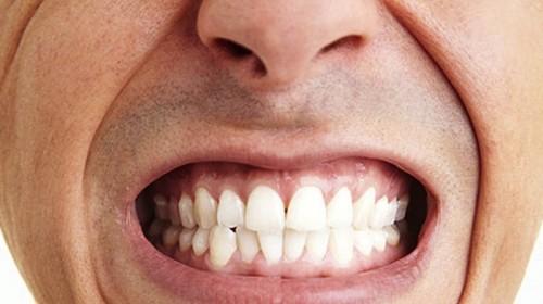 Tổng hợp từ A - Z các vấn đề về bệnh nghiến răng chi tiết nhất 1