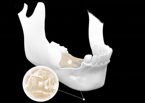 Những kiến thức quan trọng cần biết về tiêu xương răng1