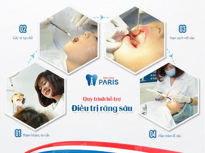 Bệnh sâu răng có đang là vấn đề của bạn? 5