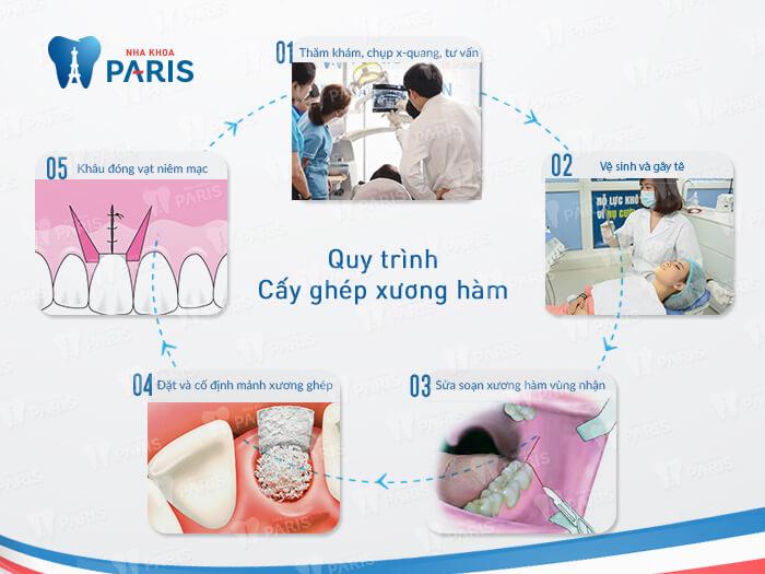 Những kiến thức quan trọng cần biết về tiêu xương răng 5