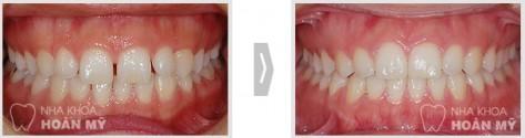 Tổng hợp các vấn đề cần biết về răng thưa 11