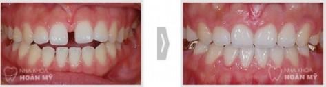 Tổng hợp các vấn đề cần biết về răng thưa 2