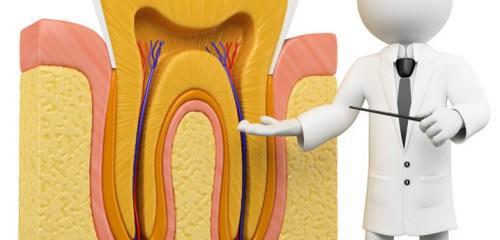 5 điều quan trọng cần biết về bệnh lý viêm tủy răng 1