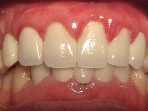 Đừng bỏ qua mối nguy từ bệnh nướu răng hay bệnh nha chu 31