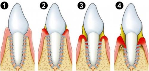 Đừng bỏ qua mối nguy từ bệnh nướu răng hay bệnh nha chu32