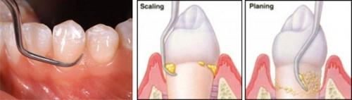 Cách chữa bệnh hôi miệng hiệu quả nhất theo chuyên khoa 3