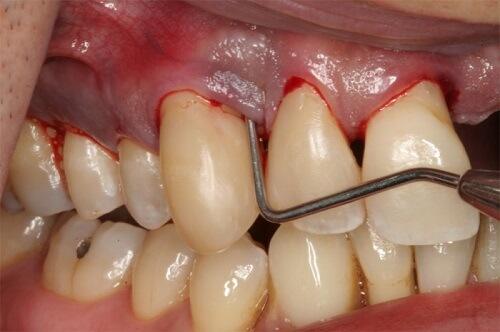 Cách chữa viêm chân răng đơn giản mà hiệu quả