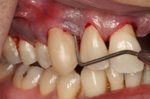 Viêm nướu chân răng là gì, nguyên nhân, cách chữa?1