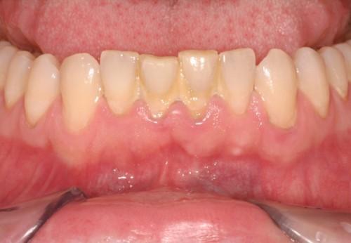 Bạn biết gì về mảng bám răng và cao răng? 20