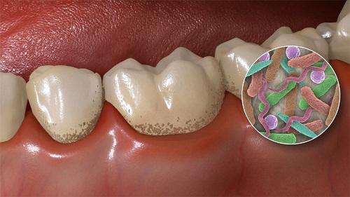 Cao răng hình thành từ đâu? Tác hại và cách lấy cao răng Tại Nhà 2