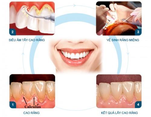 Bạn biết gì về mảng bám răng và cao răng? 23