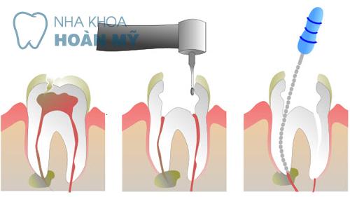 5 điều quan trọng cần biết về bệnh lý viêm tủy răng 4