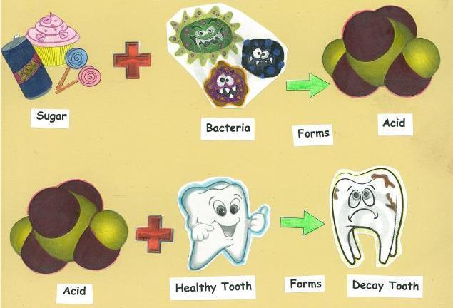 Một số cách chữa đau răng sâu nhanh và hiệu quả nhất 1