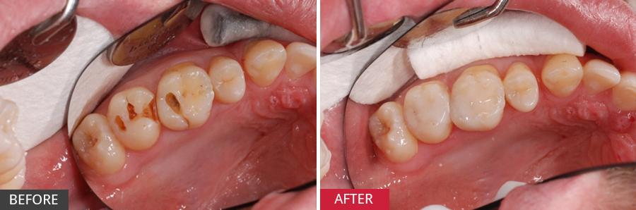 Một số cách chữa đau răng sâu nhanh và hiệu quả nhất 4