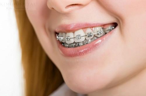 Chỉnh nha niềng răng - Giải pháp tối ưu cho răng sai lệch khớp cắn1
