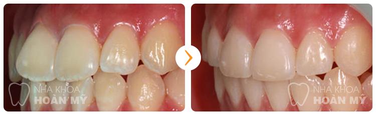 Phương pháp niềng răng hô có đau nhiều hay không?