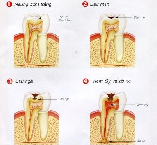 Bệnh sâu răng có đang là vấn đề của bạn? 2
