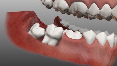 Mọc răng khôn có ảnh hưởng gì không? Chuyên gia nha khoa tư vấn 1