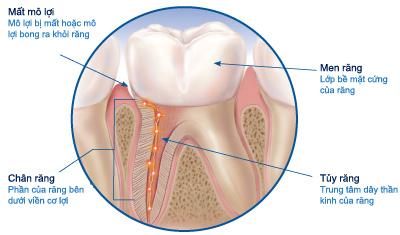 Những điều bạn cần biết để đối phó với răng nhạy cảm 3