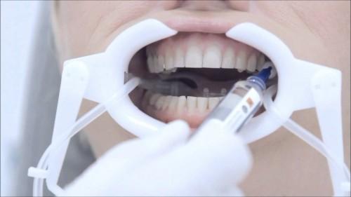 Những điều bạn cần biết để đối phó với răng nhạy cảm 5