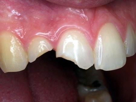 Trám răng mất thời gian bao lâu? – Bác sĩ giải đáp 1