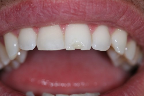 6 điều cần biết về tình trạng răng sứt mẻ 24