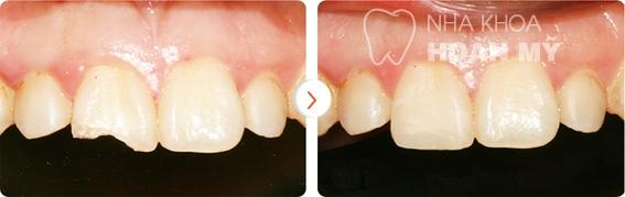 6 điều cần biết về tình trạng răng sứt mẻ 29