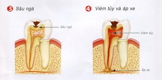 5 điều quan trọng cần biết về bệnh lý viêm tủy răng 2