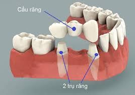 Cầu răng sứ trong lĩnh vực phục hình răng mất