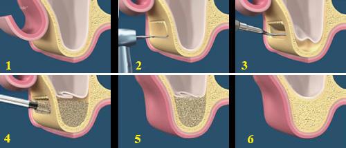 Những kiến thức quan trọng cần biết về tiêu xương răng 37