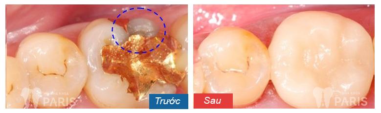 Vật liệu hàn răng mới bền suốt đời