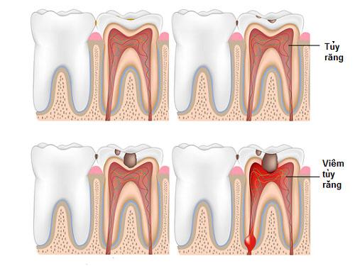 Viêm tủy răng nguyên nhân và cách điều trị