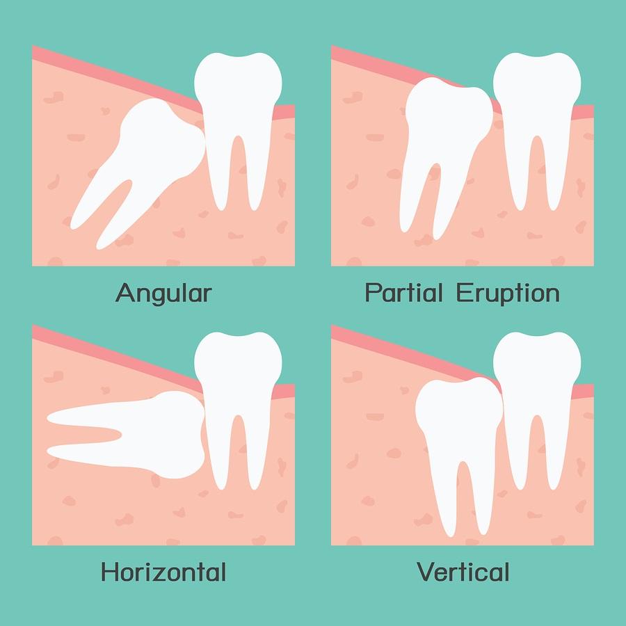 Răng khôn mọc ngầm có nên nhổ không ?