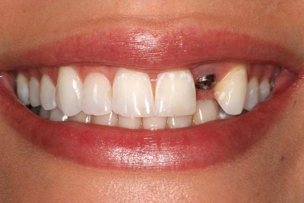 Bị tiêu xương răng sau khi mất răng có sao không?