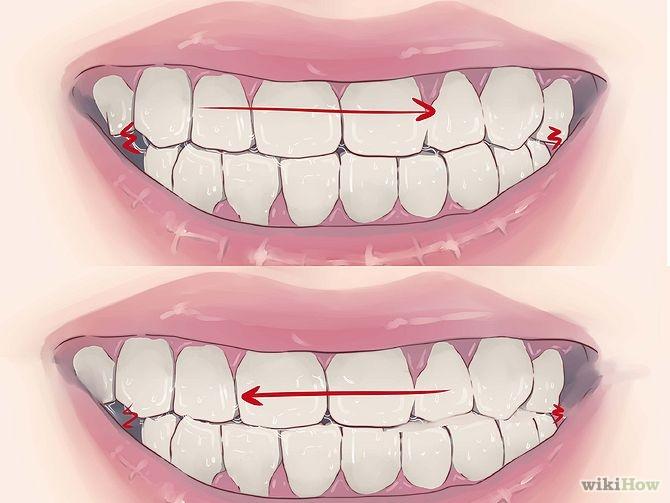 Cách chữa bệnh nghiến răng ban đêm nào hiệu quả nhất?