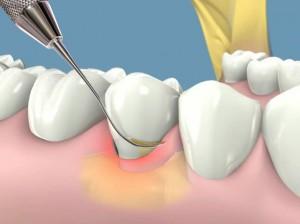 Cạo vôi răng thường xuyên tốt hay không?1