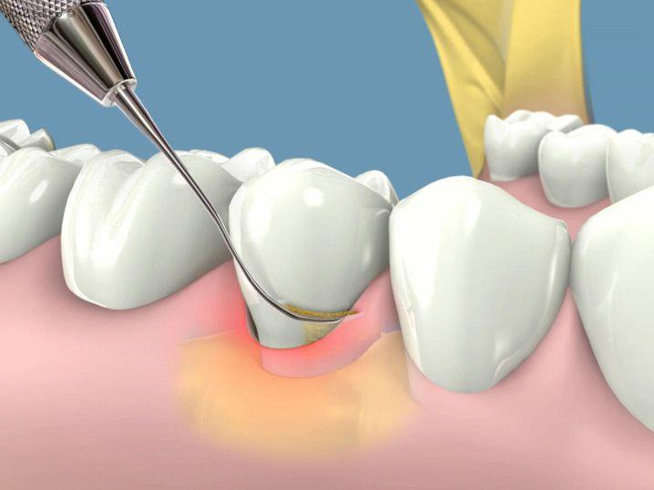 Cách làm sạch răng bằng lấy cao răng có hiệu quả không?