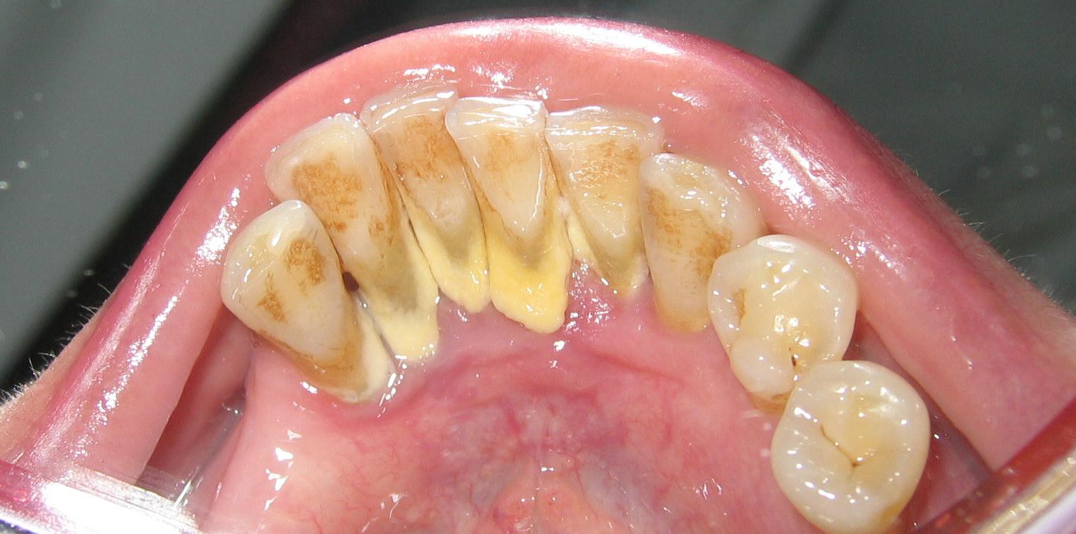 Cao răng hình thành từ đâu? Tác hại và cách lấy cao răng Tại Nhà 1