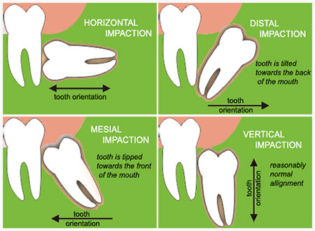 Có nhất thiết phải nhổ răng khôn?