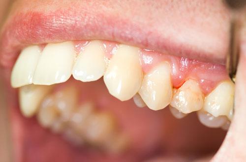 Nguyên nhân và cách điều trị viêm nướu răng hiệu quả