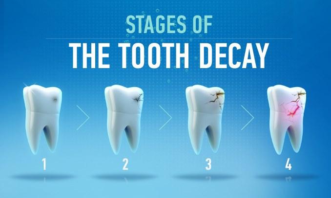 Khi nào phải Hàn răng? Hàn răng là gì?