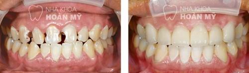 Phương pháp chữa sâu răng cửa nào nhanh nhất?