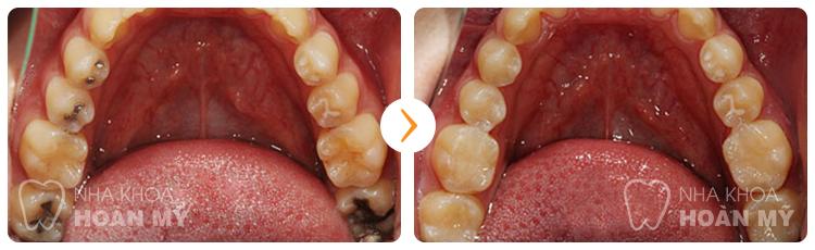 Sâu răng hàm cách trị DỨT ĐIỂM hoàn toàn