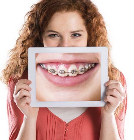 Niềng răng mất bao lâu thì hàm răng đều đẹp nhất? 2