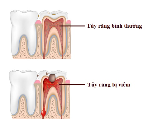 Viêm tủy răng có nguy hiểm không 1